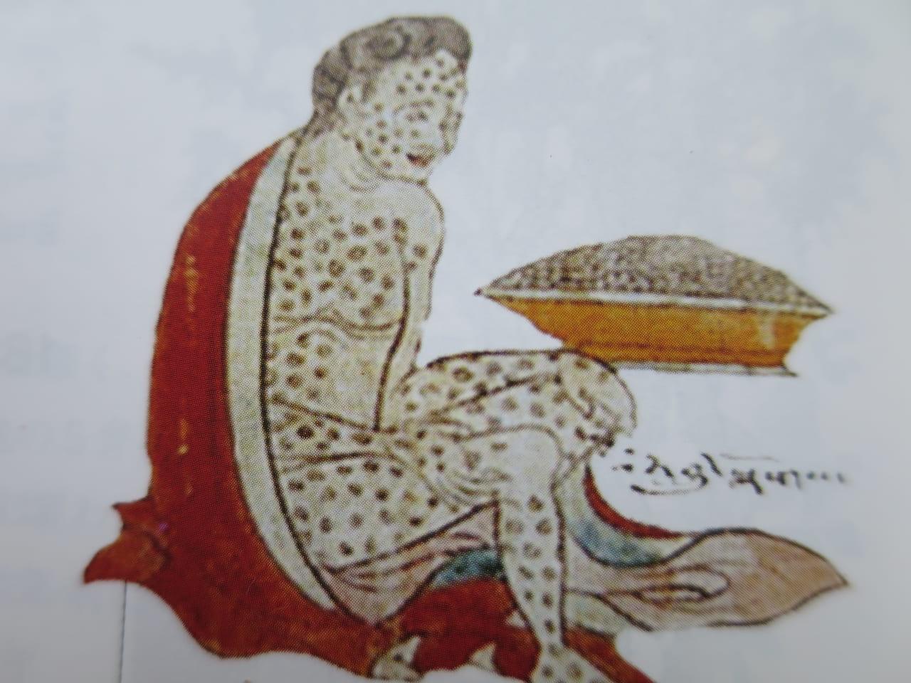 天然痘のかさぶた 四部医典の絵解き図